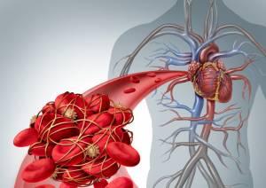 Trombosi ed embolia uccidono: ecco come prevenirle