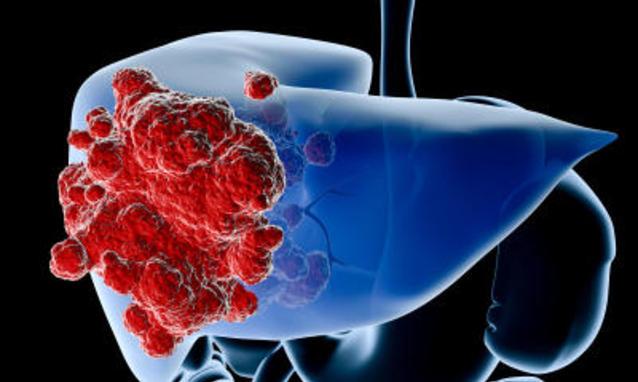 Cancro al fegato, al via la sperimentazione del vaccino