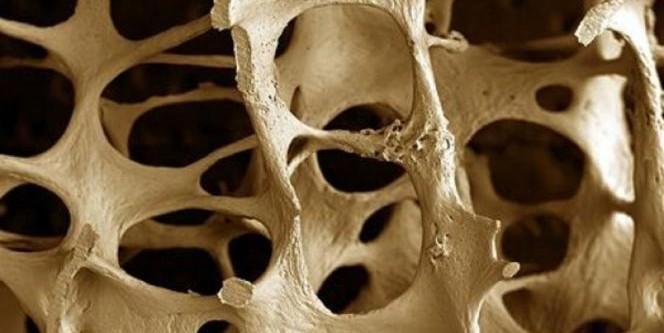 Osteoporosi, 5 mosse per prevenirla