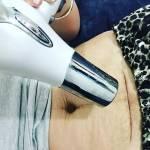 Asciugacapelli per disidratare ferita da cesareo3