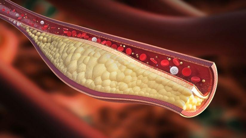 colesterolo-cattivo-limiti