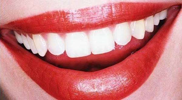 Vuoi avere denti perfetti? Attenzione a queste bevande LEGGI