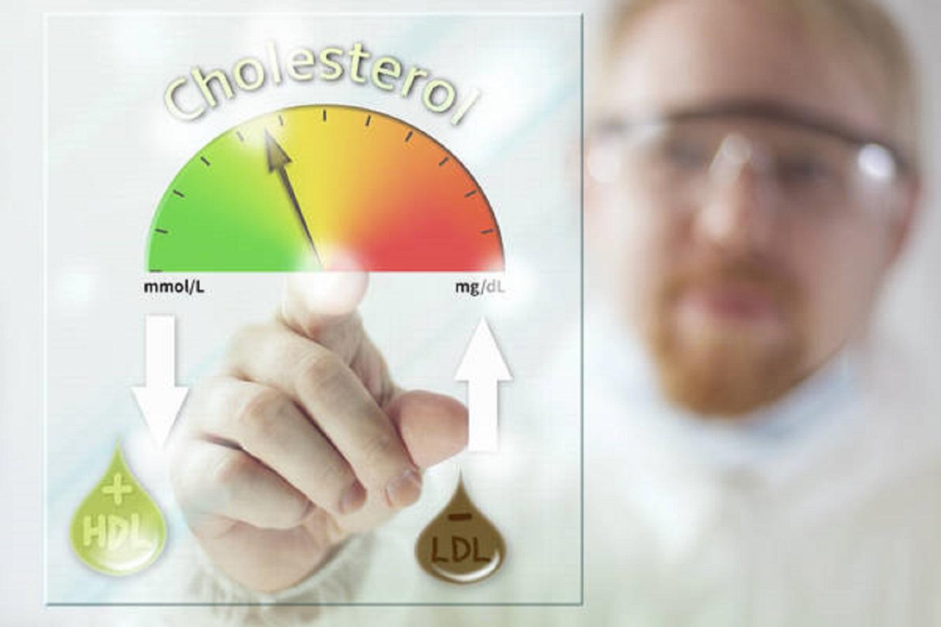 colesterolo-alto-dormire