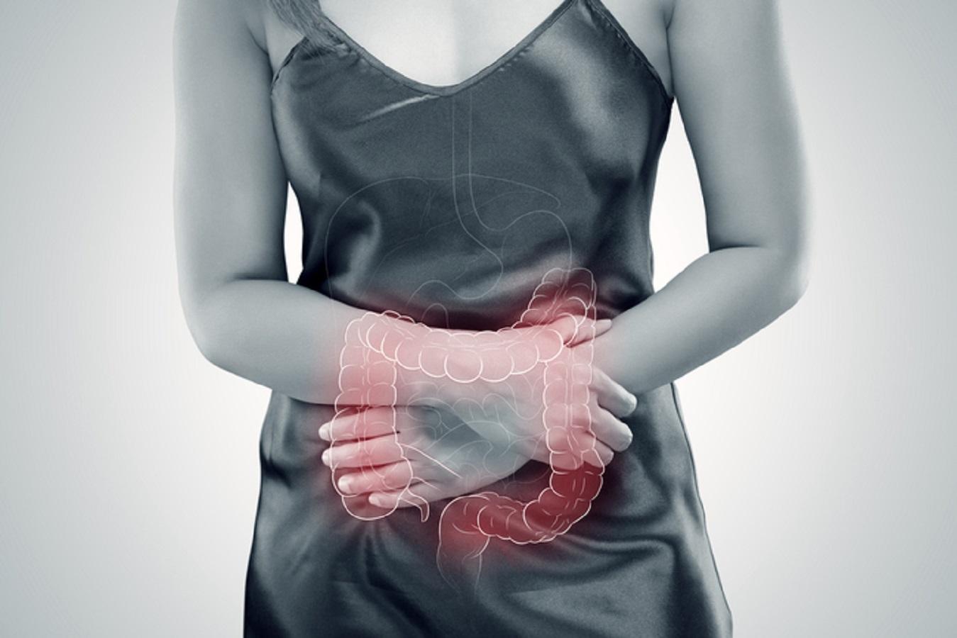 Cancro al colon, batterio intestinale potrebbe favorirlo